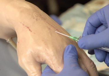 Gestione del catetere venoso periferico: quando sostituirlo? 1