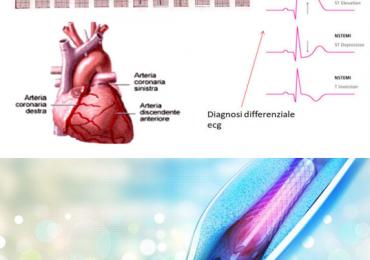 STEMI e malattia multivasale: focus su angioplastica coronarica