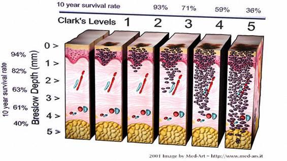Livelli di Clark nella stadiazione Melanoma