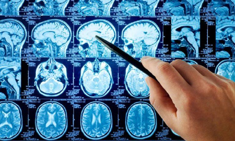 Malattie neurologiche, a Bari la riunione annuale della Sin appulo-lucana