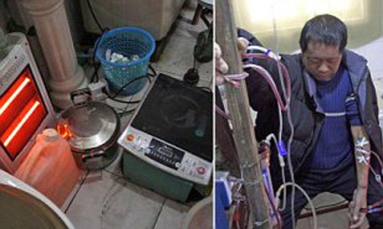 Troppo povero per recarsi in ospedale: sopravvive 13 anni con macchina per dialisi costruita con utensili da cucina