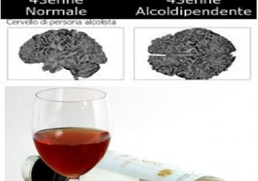 Allarme Sindrome feto alcolica : i risultati in Toscana