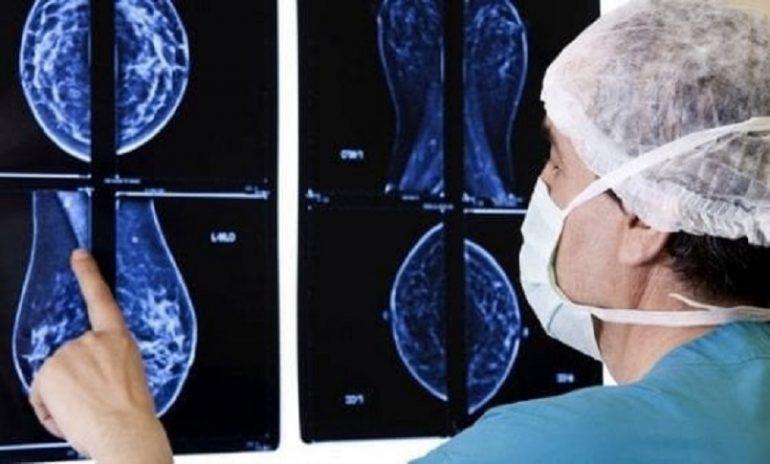 Tumore al seno: l'efficacia delle nuove terapie