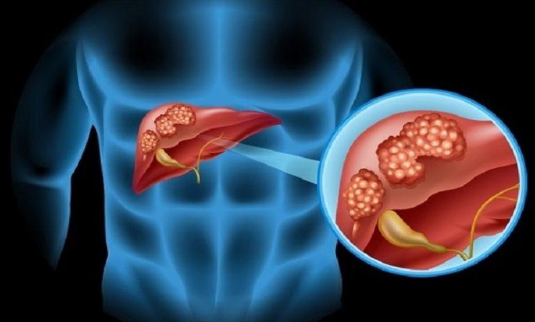 """Colangiocarcinoma: gli """"inganni"""" di un tumore sempre più diffuso"""