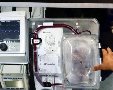 Donazione dopo morte cardiaca: organo trapiantato molte ore dopo la morte clinica grazie alla Perfusione Regionale Normotermica