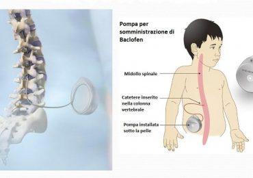Paralisi cerebrale infantile: l'uso della pompa al baclofene per ridurre la spasticità