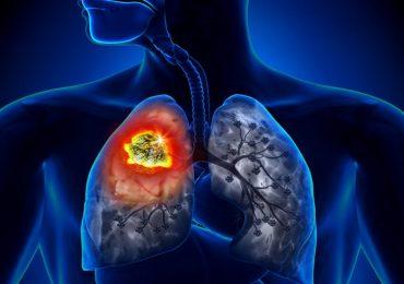 Polmoni, scoperta nuova arma contro il tumore