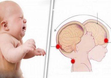 Prevenzione della sindrome del bambino scosso (Shaken Baby Syndrome)