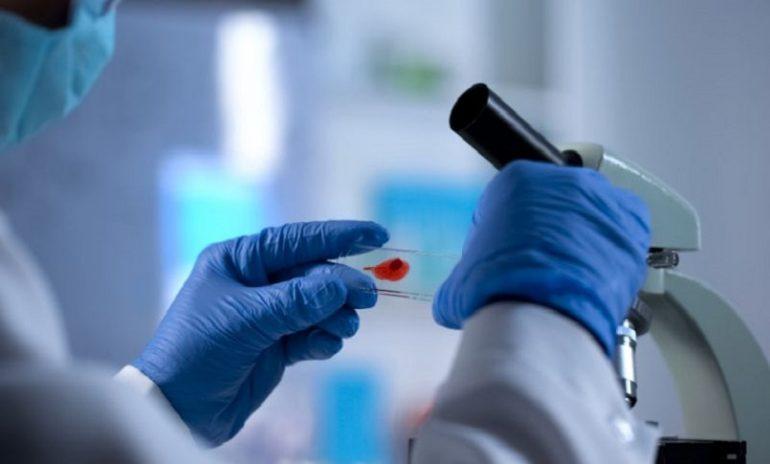 """Shock nel mondo della ricerca: """"Ho contratto l'Hiv in laboratorio"""""""