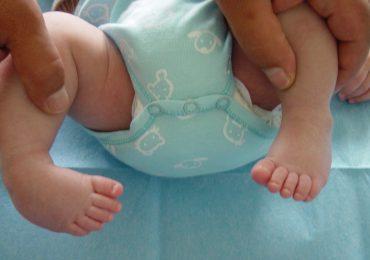 Trattamento del piede torto congenito: il metodo Ponseti