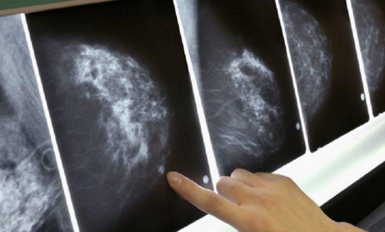 Tumore al seno, perdere peso riduce il rischio per le over 50