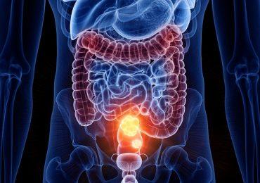 Colon-retto: dal microbiota intestinale un freno allo sviluppo del tumore.