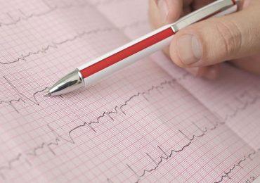 Fibrillazione atriale: diagnosi in 10 secondi grazie all'intelligenza artificiale