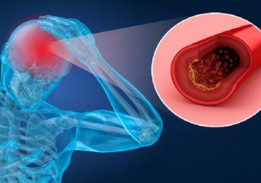 Ictus e livelli di colesterolo: valori a confronto