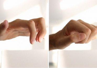 Neurotizzazione per il recupero delle mani: 14 pazienti trattati in Emilia Romagna