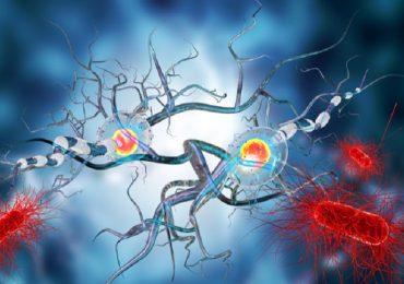 Sclerosi multipla: trapianto di cellule staminali a confronto con i migliori farmaci