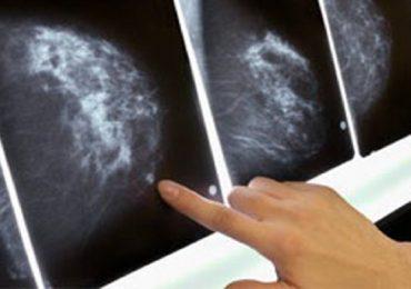 Tumore al seno, terapia a casa per due donne: prima volta in Italia