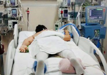 Posizione prona nel paziente con Sindrome da distress respiratorio acuto: l'analisi retrospettiva delle complicanze