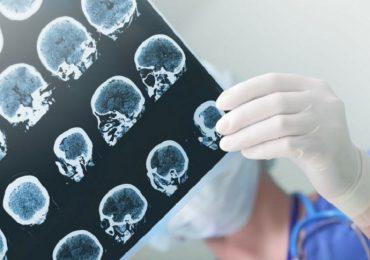 Epilessia, terapia anti-neuroinfiammatoria apre nuovi scenari.
