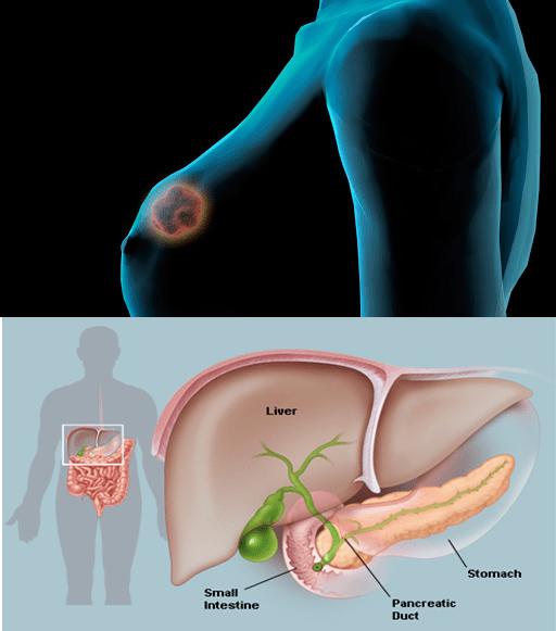 Nuovi farmaci oncologici:: Tucatinib e Olaparib