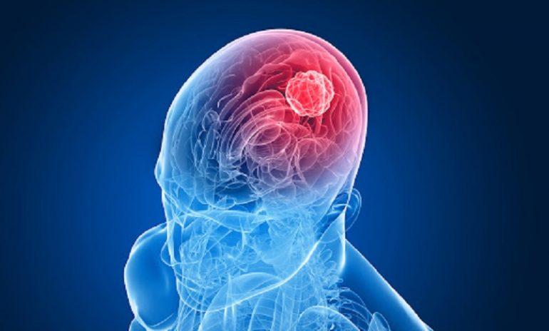Tumore al cervello, trovata la chiave per comprenderlo meglio.