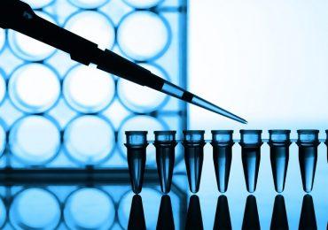 Coronavirus, la posizione della Sim ul test molecolare per la diagnosi.