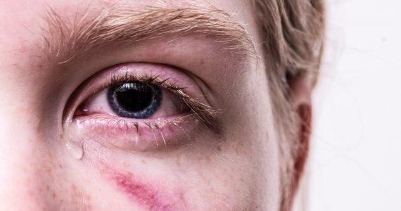 Coronavirus nelle lacrime 1