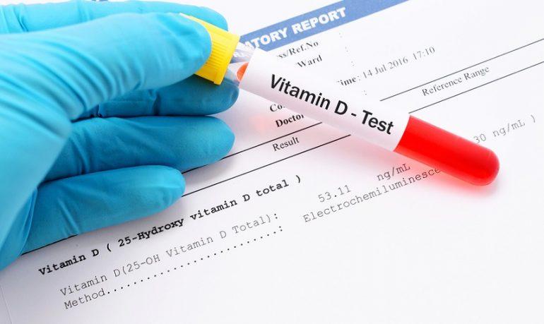 """Coronavirus, nuovo studio conferma: """"Carenza di vitamina D collegata al tasso di mortalità"""""""