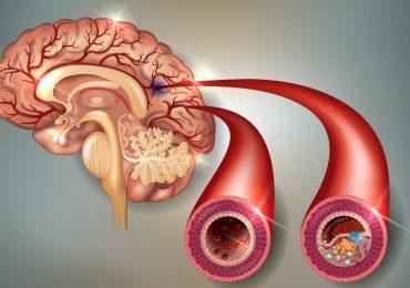 Ictus, Trombolisi, tempo somministrazione e mortalità: un nuovo studio suggerisce tempistiche
