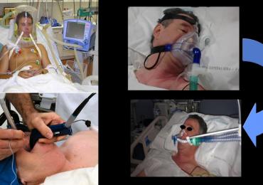 Nuove evidenze tra ventilazione non invasiva e intubazione orotracheale in caso di IRA: lo studio.