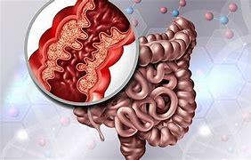 IG-IBD - Malattie infiammatorie croniche intestinali: nei pazienti con Crohn e Colite ulcerosa il rischio da contagio da Covid-19 non è aumentato 2