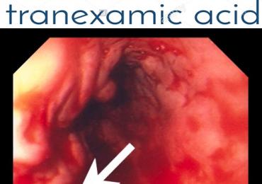 Adido tranexamico e sanguinamenti gastro-intestinali. Lo studio