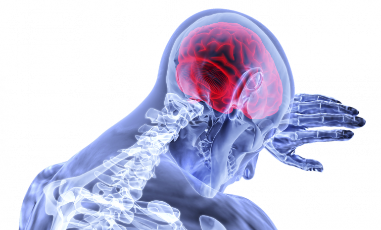 Coronavirus,  sintomi mai visti prima: danni al cervello