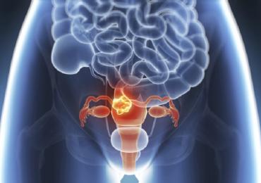 """Tumore alla cervice uterina, parte dal """"Gemelli"""" uno studio mondiale sull'immunoterapia"""