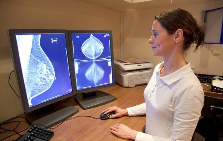 Tumori mammella e colon: 2.000 morti per ritardi diagnostici durante il lockdown per il coronavirus