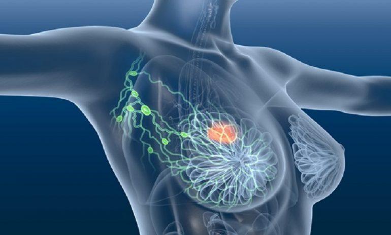 Cancro mammario, scoperto in antichi resti umani un virus che potrebbe causarlo