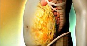 Coronavirus, grasso viscerale facilita tempesta citochinica