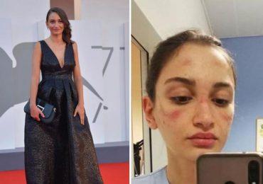 Alessia Bonari, infermiera simbolo della lotta al Covid, sul red carpet di Venezia