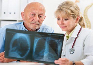 Anticoagulazione post-TAVI: esiti migliori con sola aspirina e senza clopidogrel