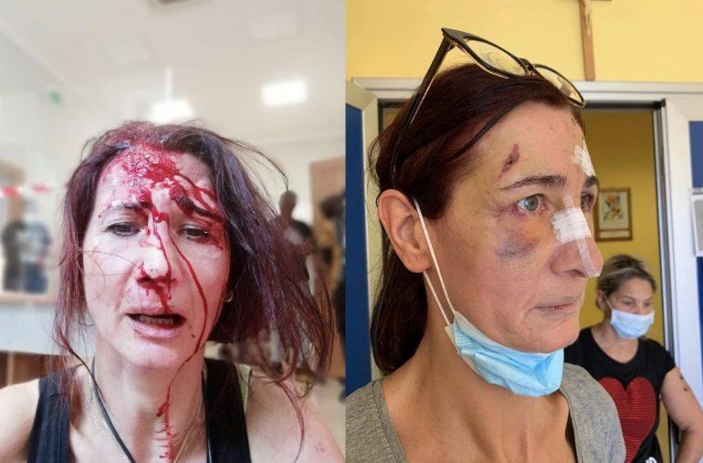 Chiede di indossare la mascherina: Oss massacrata con calci e pugni