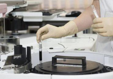 Creata la prima pelle elettronica che avverte il dolore