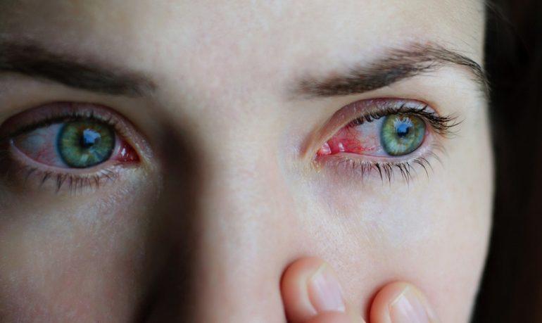 Glaucoma: le nuove armi nella terpia medica