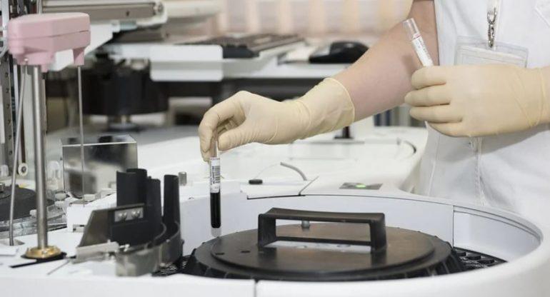 Governo scommette sulla terapia antiCovid del laboratorio Toscana Life Sciences