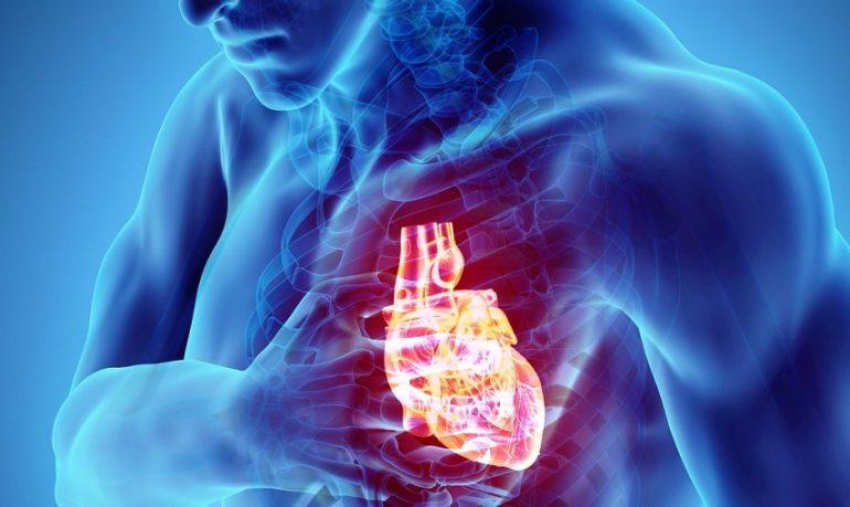 Infarto: nuove terapie e strategie di prevenzione grazie a uno studio sulle placche aterosclerotiche