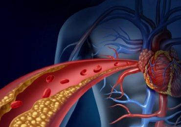 Malattie cardiovascolari: il ruolo dei PCSK9 in caso di colesterolo alto