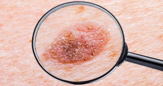 Melanoma in stadio avanzato: una combinazione di farmaci ritarda la progressione, ma in modo non significativo