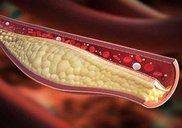 Coronavirus, statine dimezzano rischio di svilupparlo in forma grave