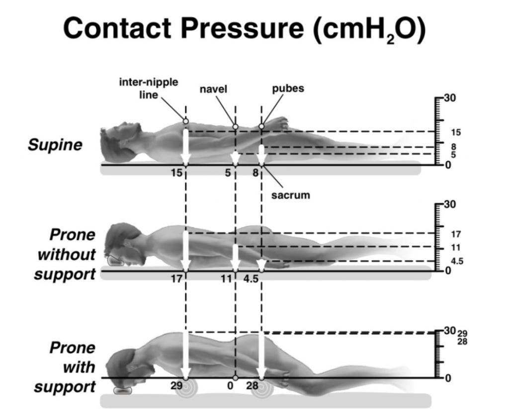 Paziente critico Covid in supporto ventilatorio: la pronazione 2