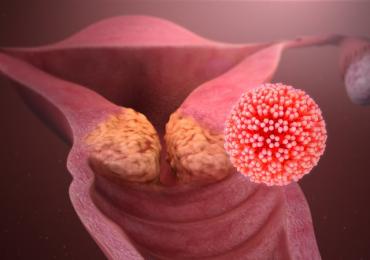 Tuore, Vaccino e Papillomavirus: le nuove evidenze scientifiche