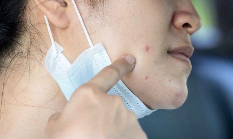 Coronavirus, mascherina compatibile con malattie della pelle